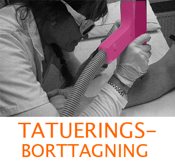 Tatueringsborttagning, laserklinik, Sundbyberg, Stockholm