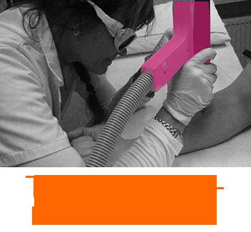 Tatueringsborttagning, laserklinik i Sundbyberg, Stockholm